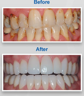 Dental Veneers Dentist North Little Rock