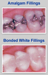 White Dental Fillings North Little Rock AR