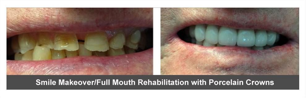 Dental Implants Dentist North Little Rock Ar 72117 72116